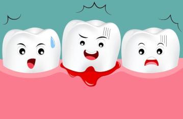 Почему кровоточат десна: причины и лечение