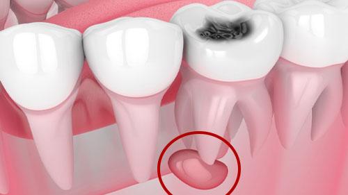 Киста под зубом нижней челюсти